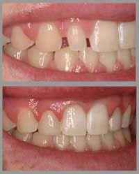 dentalbonding1