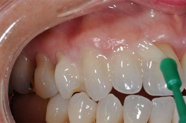 Tooth filling,dental fillings,tooth pain after filling, <a href=