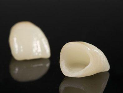 Dental Crowns Bulleen