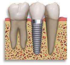 dental implants near Research