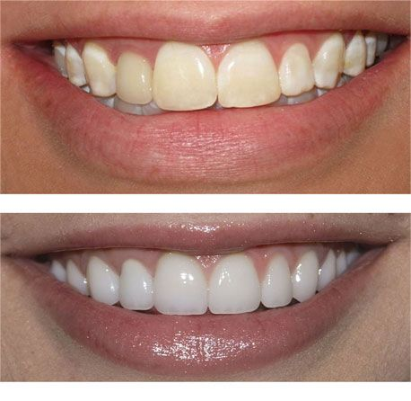 porcelain veneers research