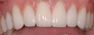Cosmetic Dentistry Balwyn