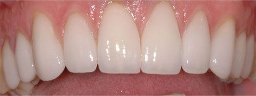 Porcelain Veneers Greensborough