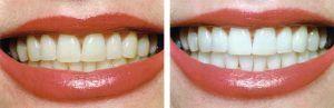 teeth bleaching eltham