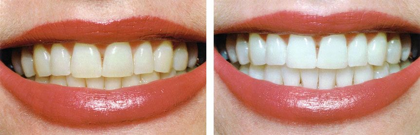 teeth whitening Bulleen