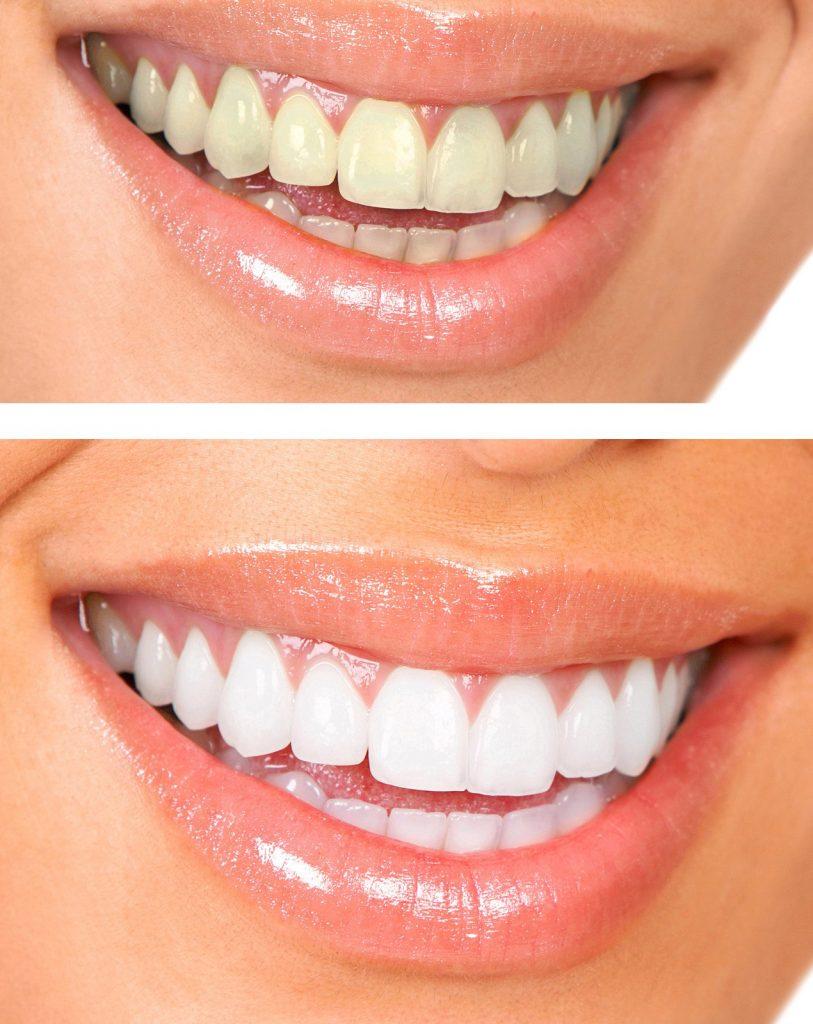 Eltham Teeth Whitening