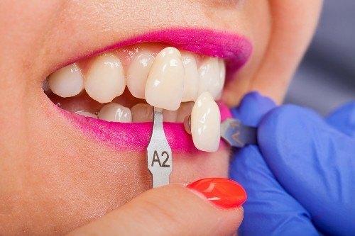 dentist eltham