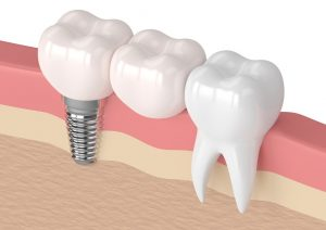 dental bridge service bulleen